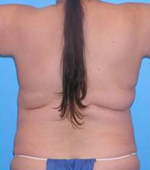 Breast Reconstruction with Flaps