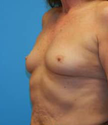 Breast Augmentation (Saline)