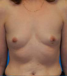 Breast Augmentation (Silicone)