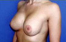 Asymmetric Breast Augmentation