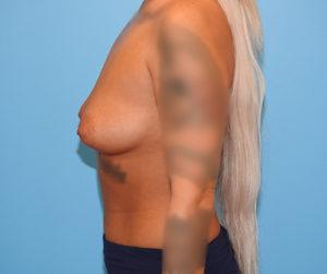 Breast Augmentation (Silicone)