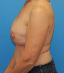 Breast Reconstruction with Tissue Expanders and Implants