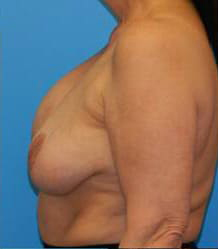 Breast Augmentation with Breast Lift