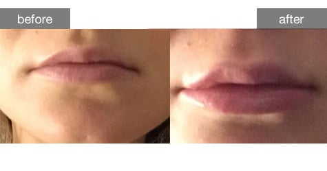 Dermal Fillers Before and After Photos