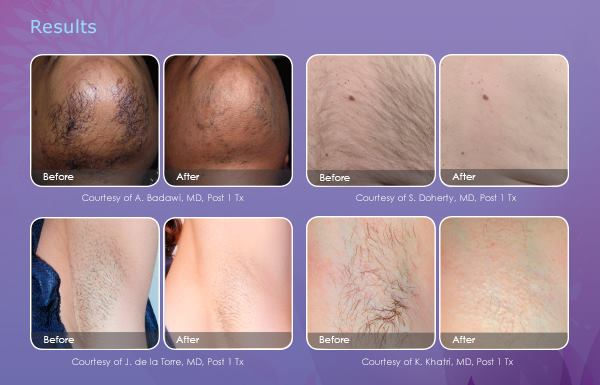 Laser Hair Removal Pittsburgh Hair Reduction Pennsylvania