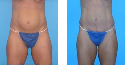 Tummy Tuck Before and After Photos