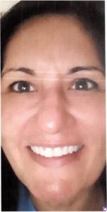 Non Invasive Laser Treatment (IPL- INTENSE PULSE LIGHT )